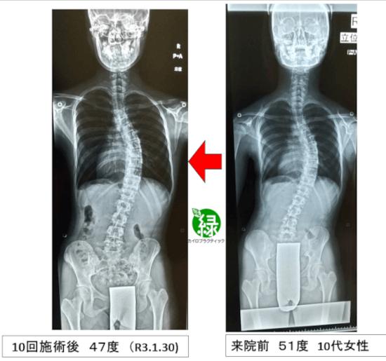 側弯症のレントゲン比較写真